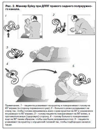 Как избавиться от позиционного головокружения