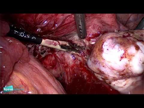 Эндометриоз лечение отзывы гинекологов
